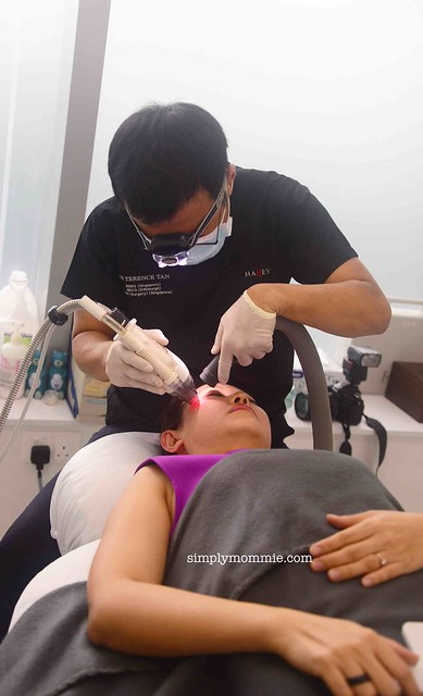 Fraxel and laser treatment