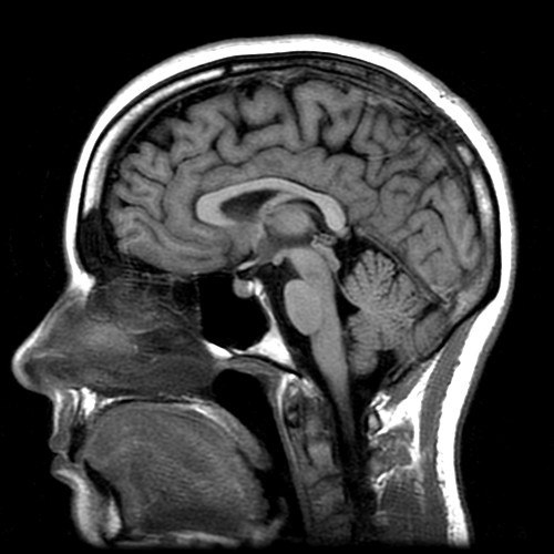 20060508 - Carolyn's MRI - Image 8 of 15 - Detailed Carolyn brain | by Rev. Xanatos Satanicos Bombasticos (ClintJCL)