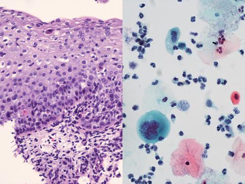 Cervix Mild Dysplasia Histology Cytology Correlation Of