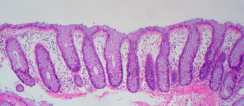 Normal colonic mucosa