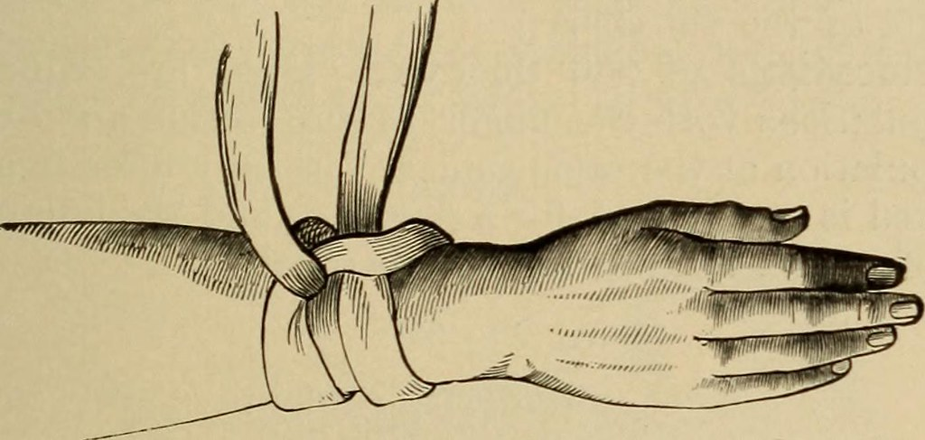"Image from page 416 of ""Minor and operative surgery, including bandaging"" (1905)"