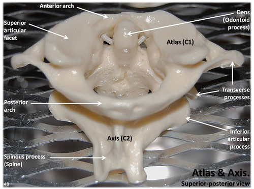 bone diagrams to label atlas c1 and axis c2 vertebrae  superior view with labels  atlas c1 and axis c2 vertebrae  superior view with labels