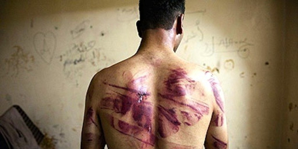 Human Rights Abuses Continue Despite Public Acclaim for Torture Hearings