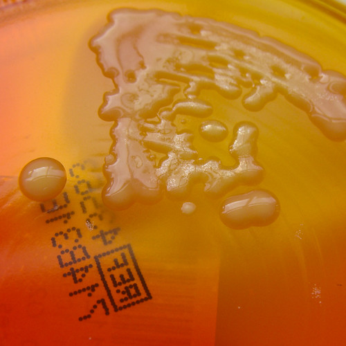 X.L.D. Agar 1 - detail | by Nathan Reading