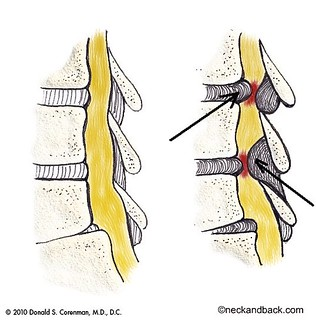 Stenosis of the Spine | Illustration of Spinal Stenosis | Spine Doctor in Vail, Colorado | by neckandback