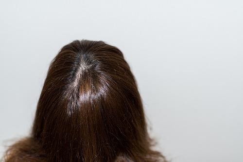 女性 薄毛 治療