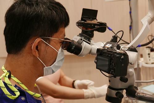 板橋絕美牙醫利用顯微鏡技術,讓我的缺牙不再露臉啦~ (5)