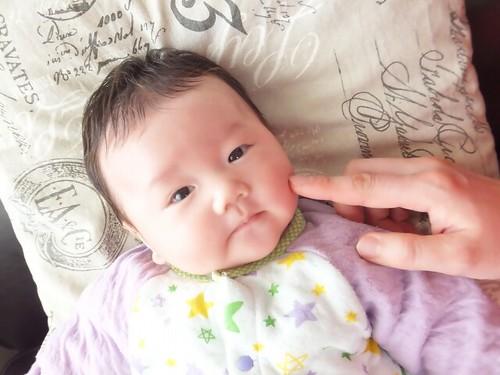 赤ちゃん 日焼け ケア