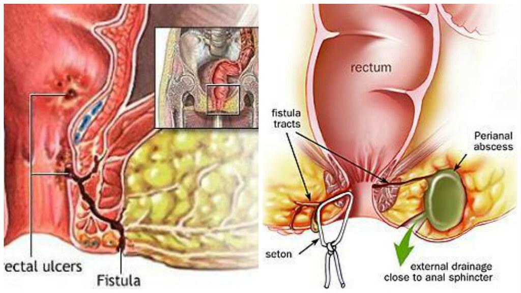 Penyebab Perianal Abses dan Fistula Perianal / Fistula Ani