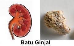 Obat Tradisional Batu Ginjal Tanpa Operasi
