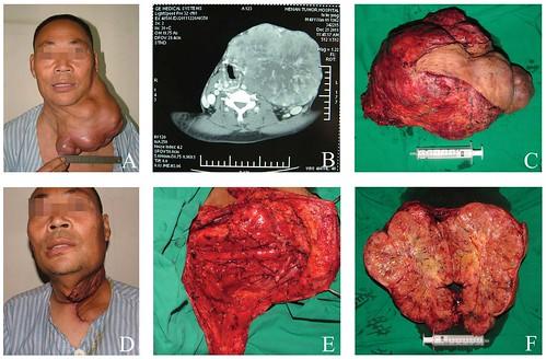 Obat Kanker Tiroid