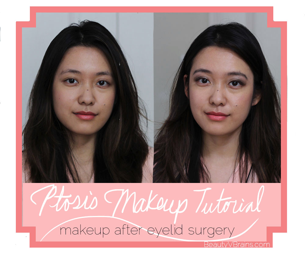 Eye makeup tutorial to hide ptosis after surgery scars