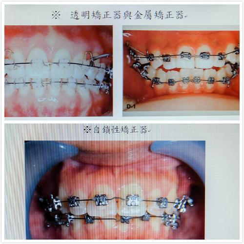 [推薦] 我在台南佳美牙醫學到牙齒矯正和跑馬拉松一樣需要耐心 (2)