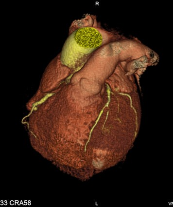 3d Radiology Center - Cardiac
